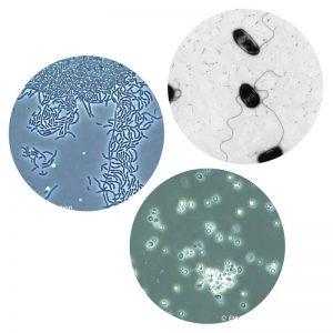 3 forskellige mikroorganismer. Byhaver.dk